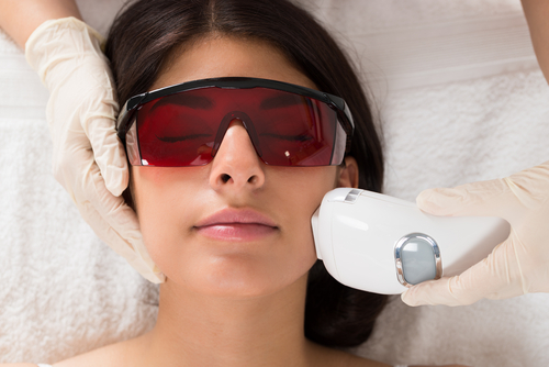 Client undergoing laser treatment to clear skin