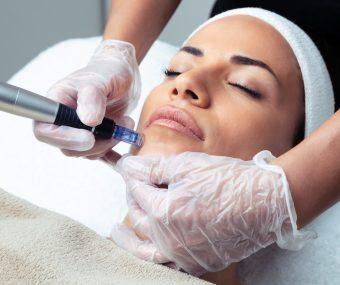 Clinician administering dermapen treatment