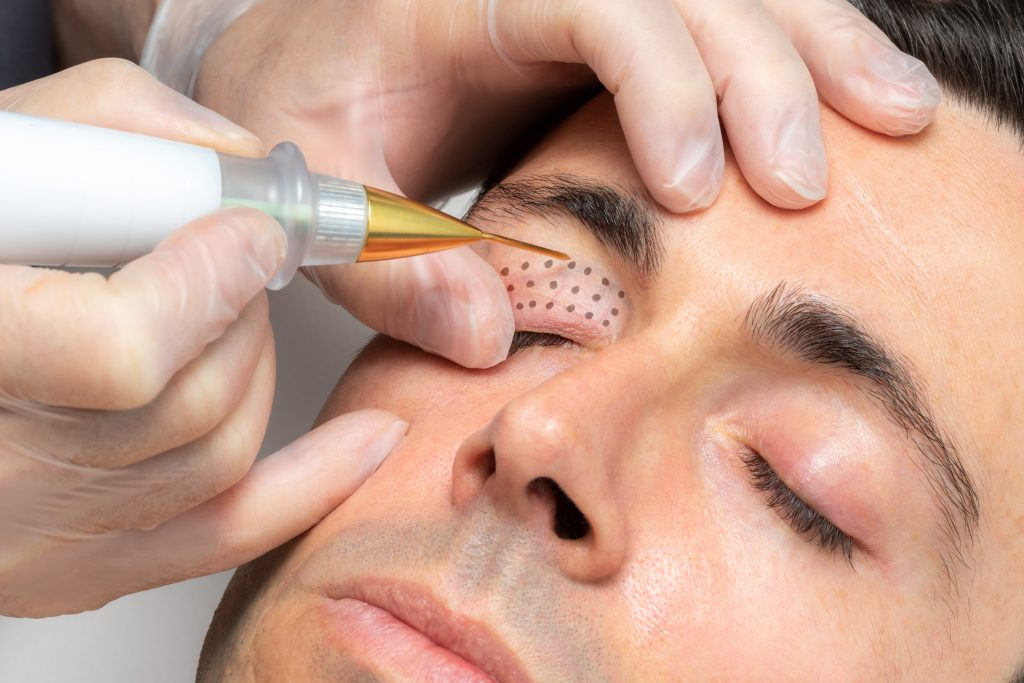 clinician performing plasma fibroblast therapy to tighten patients eyelids