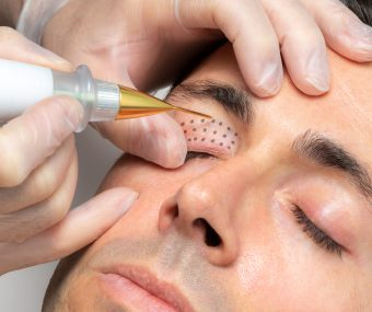 Professional treating clients eyelids with plasma fibroblast therapy