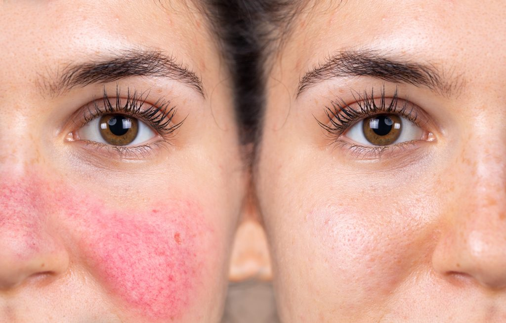 Comparison showing a patient before and after being treated for skin redness.