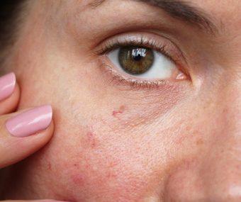 Client showing thread veins on cheek