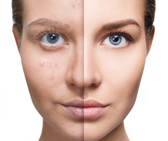 comparison showing before and after acne treatment