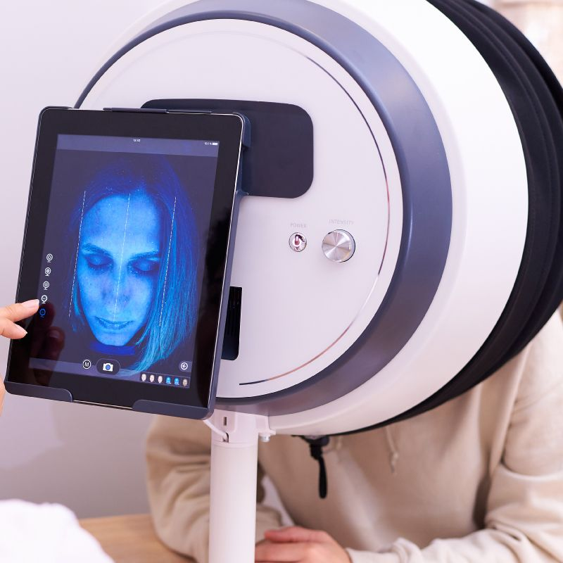 Analysing patients skin through a Skinscope LED machine
