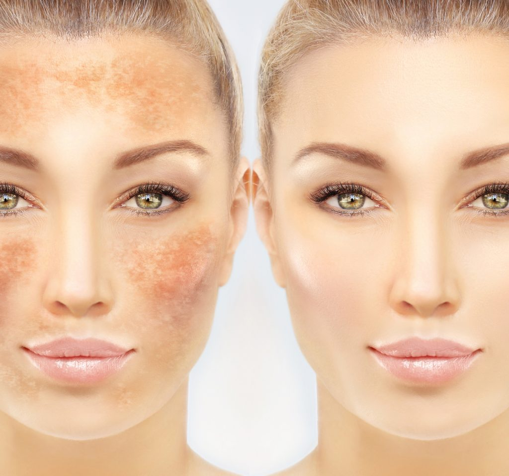 Comparison of client before and after skin pigmentation treatment