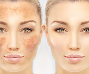 Comparison showing before and after skin pigmentation treatment