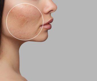 Pore reduction skin treatment